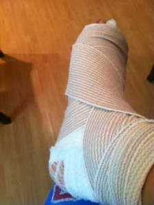 injured foot, cysts on foot, cyst, injury, foot injury