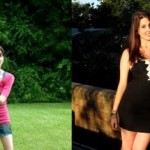anorexia-before-after-435