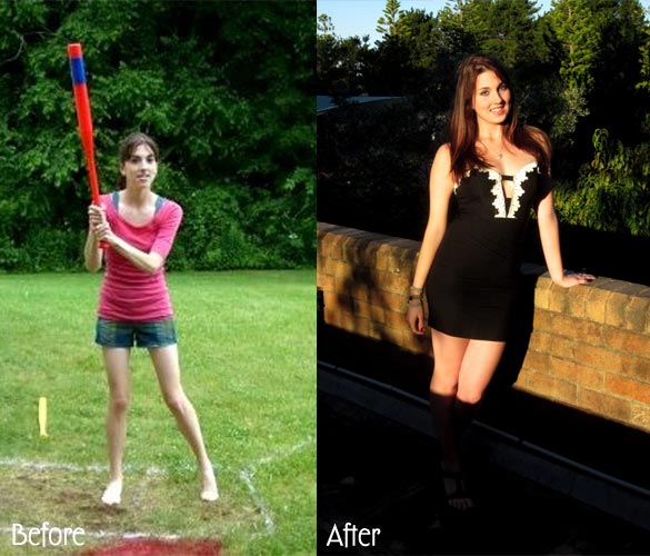 anorexia-before-after